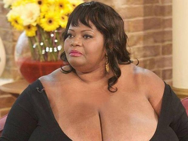 Κι όμως υπάρχει! Το στήθος αυτής της γυναίκας ζυγίζει... 100 κιλά!