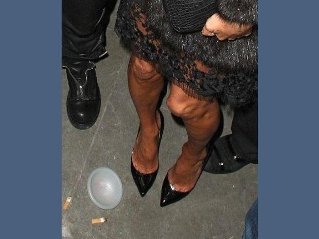 Σε ποιο διάσημο supermodel ανήκουν αυτά τα τρομακτικά πόδια;