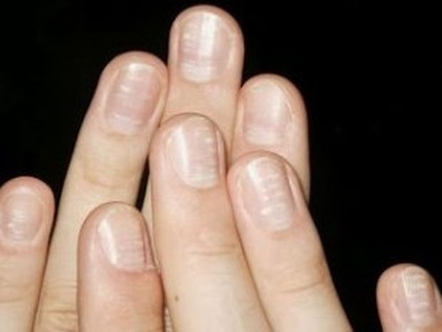 Σε ανησυχούν τα λευκά σημάδια στα νύχια σου; Δες πραγματικά τι συμβαίνει!