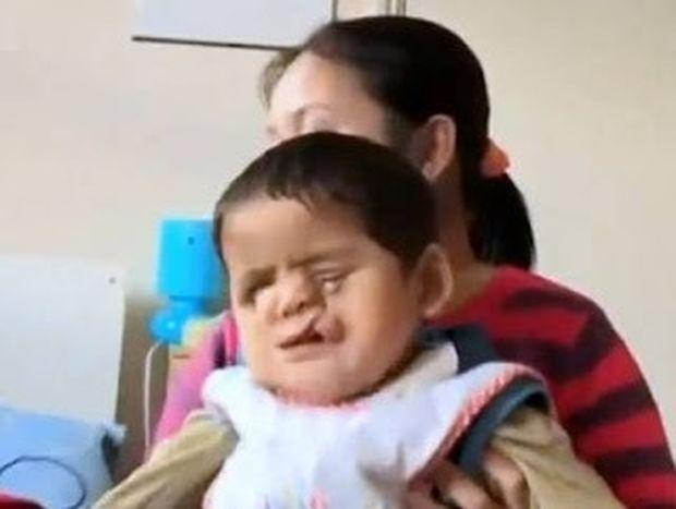 Συγκλονιστικό: Το αγοράκι που απέκτησε καινούργιο πρόσωπο! (video)