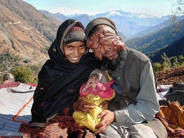 Ο άνδρας χωρίς πρόσωπο και η γυναίκα με ένα πόδι έγιναν... γονείς!