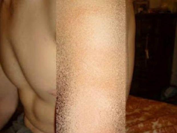 Xτύπημα από κεραυνό - Δείτε τι κάνει στο ανθρώπινο δέρμα (pics)