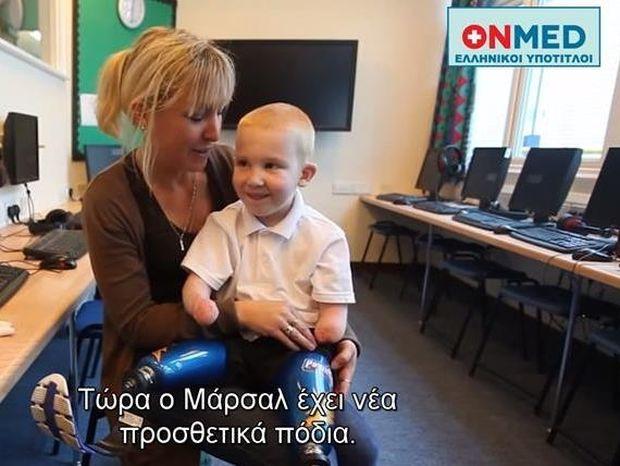 Ο πεντάχρονος με τα προσθετικά πόδια που μας συγκίνησε (video)