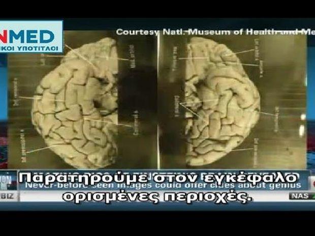 CNN: Εικόνες από τον εγκέφαλο του Αϊνστάιν (βίντεο)
