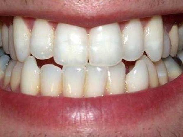 Απίστευτο: Ένας 13χρονος καθαρίζει τα δόντια του με... (pics)