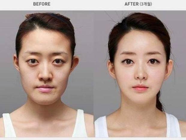 Απίστευτες φωτογραφίες ανθρώπων πριν και μετά την πλαστική