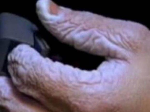 Δείτε πώς γίνεται το χέρι σας αν μείνετε 10 μέρες μέσα σε νερό (vid)