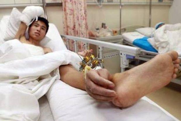 ΣΟΚΑΡΙΣΤΙΚΕΣ ΕΙΚΟΝΕΣ: Του έραψαν το χέρι στον... αστράγαλο!