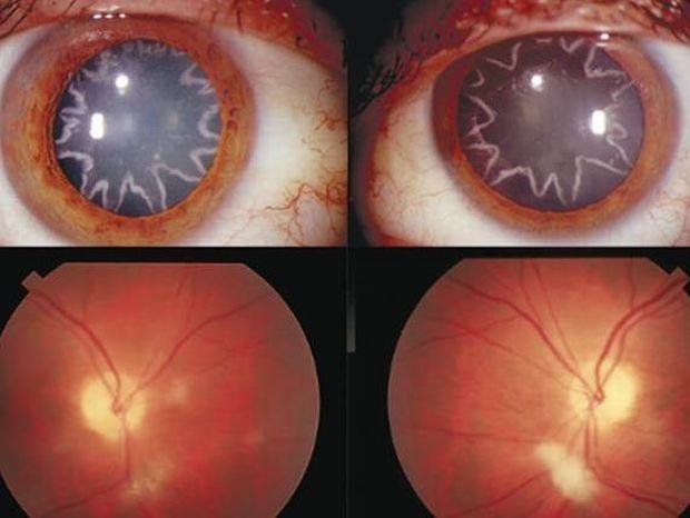 Δείτε πως έγιναν τα μάτια του όταν 14.000 volt διαπεράσαν το σώμα του!