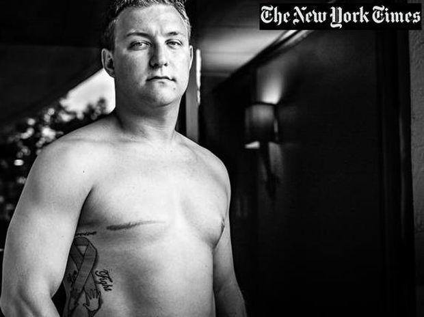 Σοκαριστικό – άνδρες με καρκίνο του μαστού (φωτογραφίες)