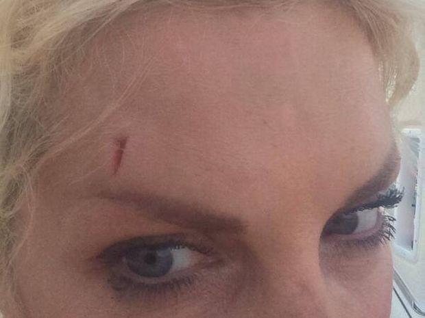 Ζώδια και αστέρια: Ελένη Μενεγάκη - Το χτύπημα στο κεφάλι, τα ράμματα και η selfie