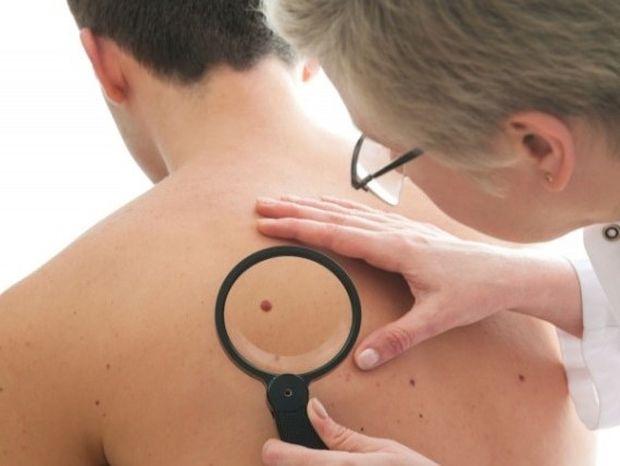 10 συμπτώματα του καρκίνου που δεν πρέπει να αγνοούμε