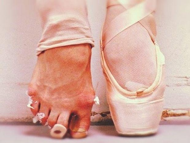 Η σκληρή πραγματικότητα στο χώρο του μπαλέτου! (φωτογραφίες)