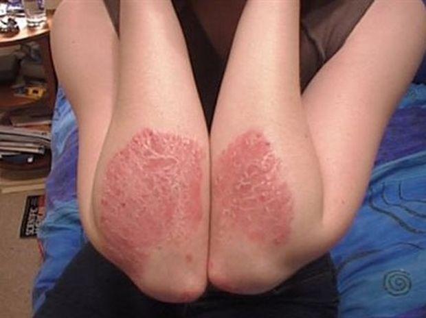 Ψωρίαση: Νέο φάρμακο υπόσχεται στους πάσχοντες καθαρό δέρμα