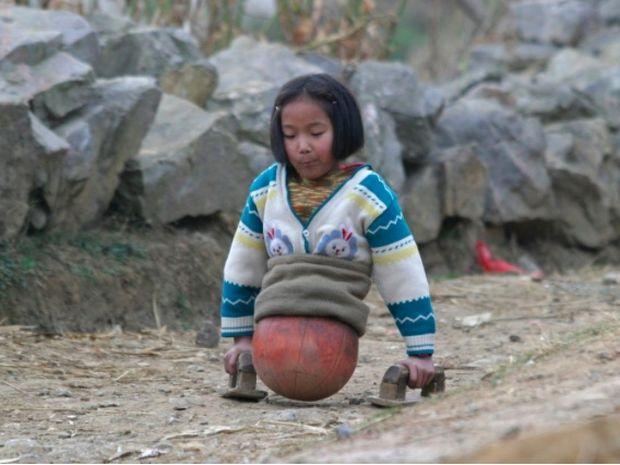 Συγκλονιστικό! Παρόλο που μεγάλωσε χωρίς πόδια κατάφερε να κάνει το όνειρο της πραγματικότητα!