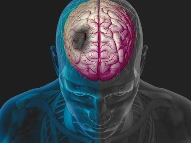 Εγκεφαλικό επεισόδιο: Τα 10 συνηθέστερα αίτια