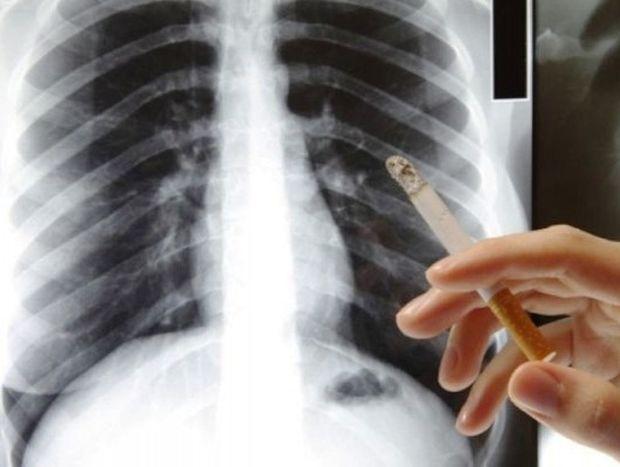 Τσιγάρο: Πότε θα καθαρίσουν οι πνεύμονες αν το κόψετε