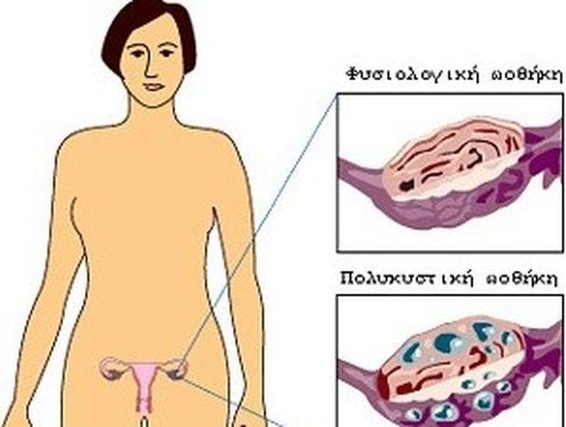 Πολυκυστικές ωοθήκες: Τι είναι και πώς αντιμετωπίζονται