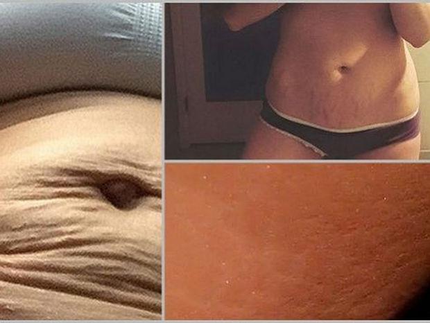 Πέντε διάσημες μαμάδες που έδειξαν γυμνό το κορμί τους μετά την εγκυμοσύνη