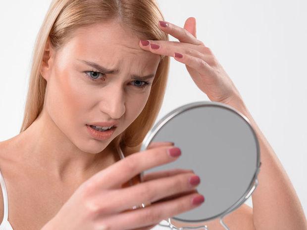 Ρυτίδες στο πρόσωπο: Τι αποκαλύπτουν για την υγεία (pics)