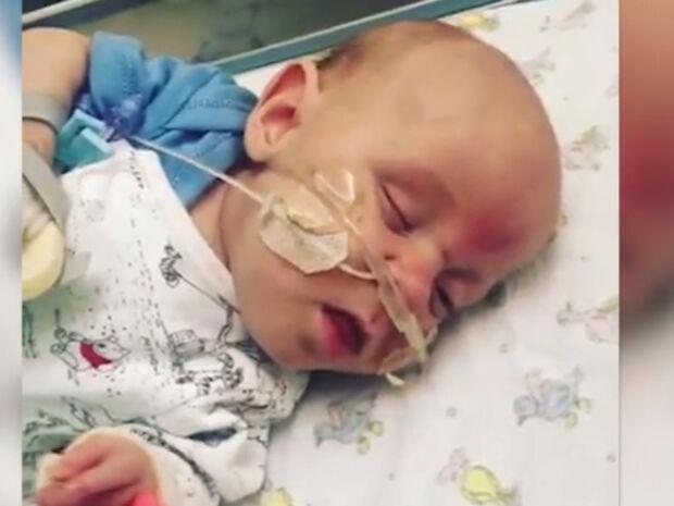 Πρόωρο μωρό νίκησε όλες τις πιθανότητες και κατάφερε να επιβιώσει! (vid)